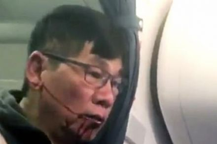 Doctor hauled off USA flight says it was worse than Vietnam War