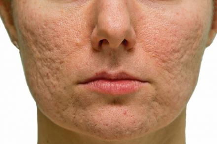 Treating acne scars, Life & Culture - THE BUSINESS TIMES