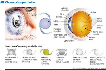 The evolving vision of cataract surgery, Life & Culture