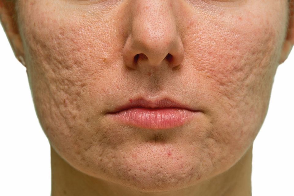Treating Acne Scars Life Culture The Business Times